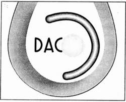 Система DAC фирмы Zanuss